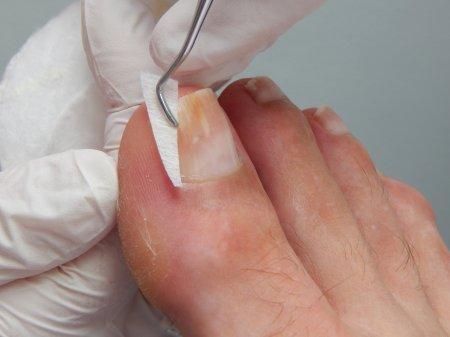 Medische voetzorg